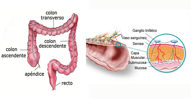 Qué es el cáncer de colon? | Asociación Española Contra el Cáncer