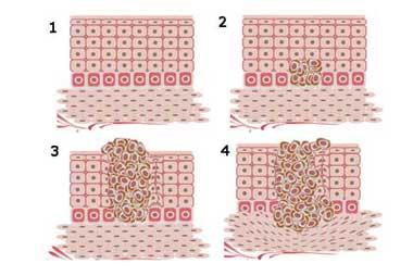 Anatomía del seno - Carcinogénesis