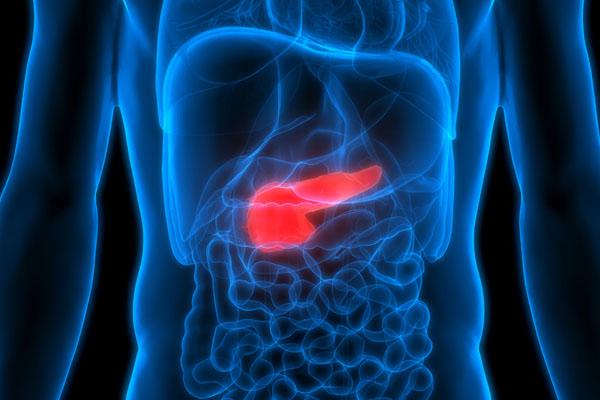 Resultado de imagen para cancer de pancreas